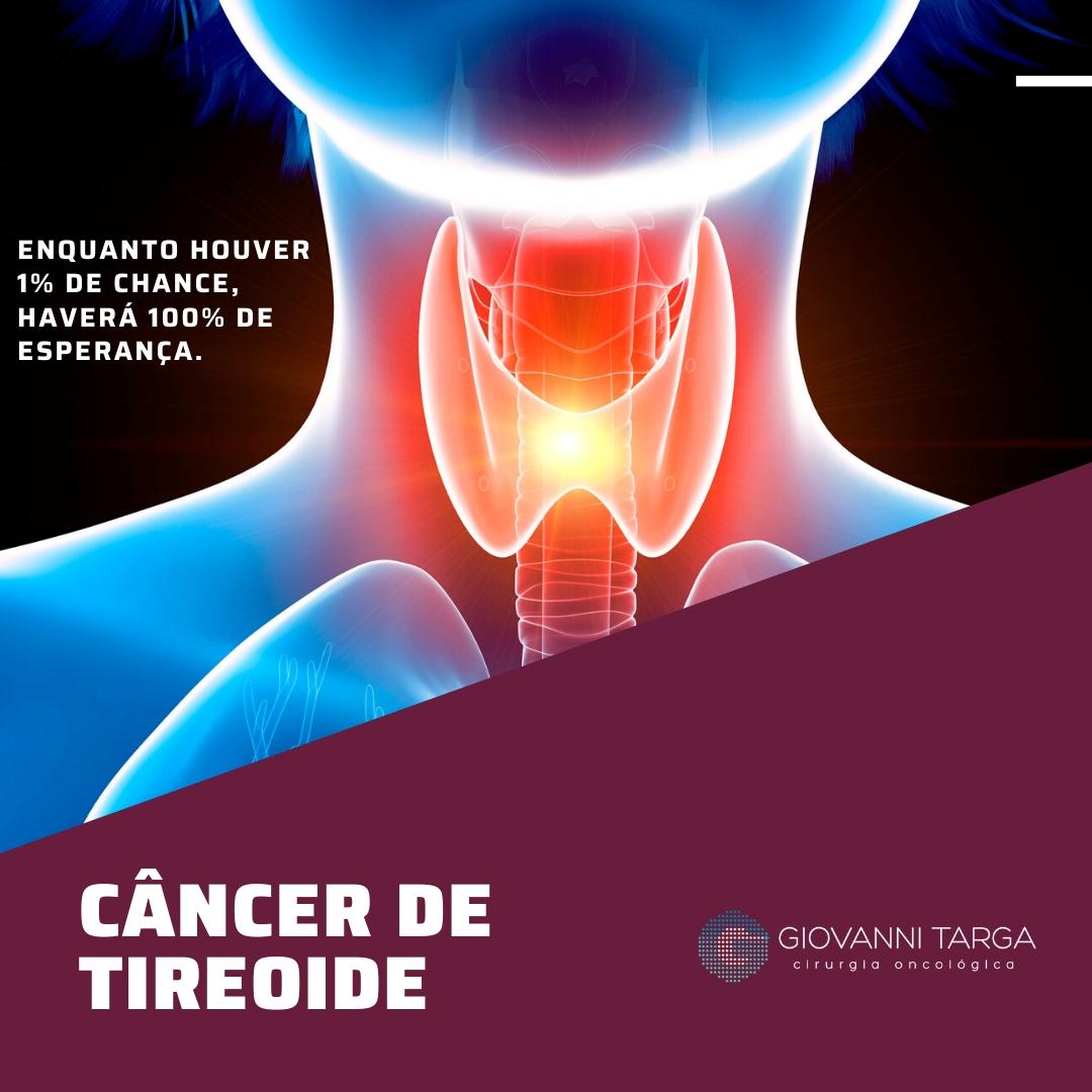 cancer de tireoide